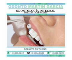 Carillas Dentales - Super Estéticas e Imperceptibles !!!
