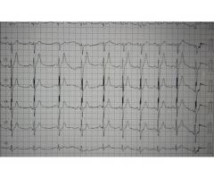 Electrocardiograma amba /caba a domicilio