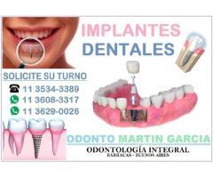 Implantes Dentales Inmediatos Titanio Optima Oseointegración